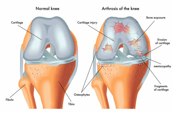 knee cartilage treatments
