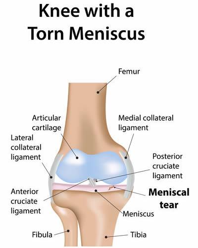 knee meniscal tear surgery
